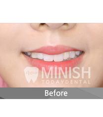 今日安牙科牙齿矫正案例对比图_术前
