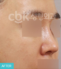韩国CBK整形外科鼻部修复手术案例对比图_术后