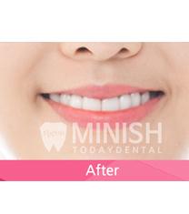 今日安牙科牙齿矫正案例对比图_术后