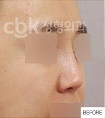 韩国CBK整形外科鼻部修复手术案例对比图_术前