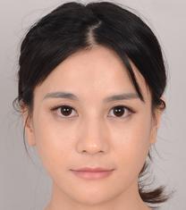 JJ洪镇柱整形外科下颌角手术案例对比图