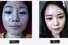 国字脸3套整形方案曝光,最后一种曾风靡韩国!