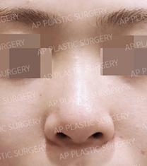 韩国AP整形外科医院隆鼻案例对比图