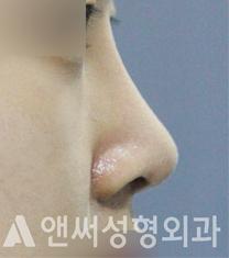 颜说整形外科鼻部矫正案例对比图_术后