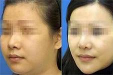 面部轮廓精雕什么意思,需要多少钱?