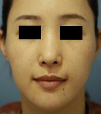 迪美丽整形外科v-line整形案例对比图