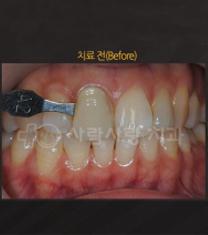 人爱首尔牙齿科医院牙齿美白案例对比图