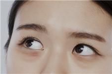 韩国艾恩眼底脂肪重置手术多少钱
