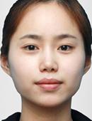 面部轮廓整形前后对比照片