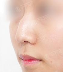 ?优尼克整形外科医院驼峰鼻矫正案例对比图