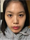 韩国那木脂肪填充效果怎么样?网友分享真实整形案例