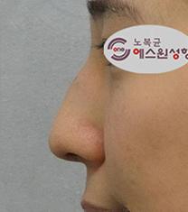 韩国SONE整形外科驼峰鼻矫正案例对比图
