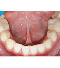 UC江南牙科牙齿矫正案例对比图
