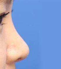 TheBidan德碧亶整形外科隆鼻案例对比图