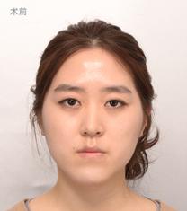 韩国爱宝(Everm)整形医院双鄂手术案例对比图