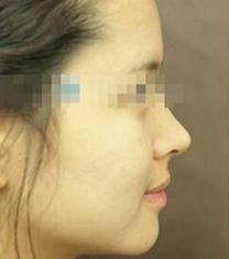 韩国trend整形医院鼻整形案例对比图
