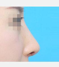 韩国ICON(图标)整形医院驼峰鼻矫正案例对比图
