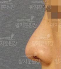 韩国延世Saint整形医院隆鼻案例对比图