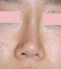 韩国爱美(IMI)整形医院歪鼻矫正案例对比图