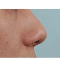 韩国BOB整形医院隆鼻案例对比图