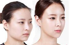 韩国下颌角整形手术大概需要多少钱?
