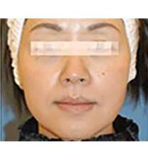 韩国特怡斯thesclinic整形医院除皱手术案例对比图_术后