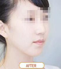 韩国Orange(橙色)整形医院凸嘴手术案例对比图_术后