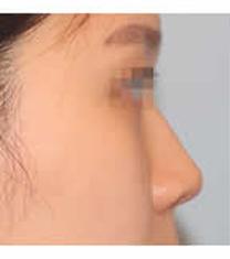 韩国清潭瑞整形医院隆鼻案例对比图