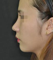 韩国美艺整形医院隆鼻案例对比图_术后