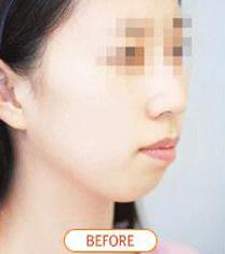 韩国Orange(橙色)整形医院凸嘴手术案例对比图_术前
