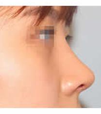 韩国清潭瑞整形医院隆鼻案例对比图_术后