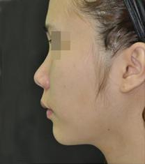 韩国美艺整形医院隆鼻案例对比图_术前