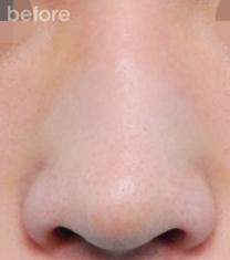 韩国三星梦(SamsungDream)整形医院歪鼻矫正案例对比图_术前
