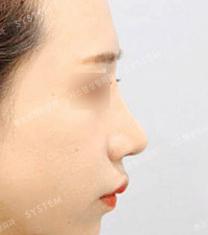 韩国SYSTEM整形医院隆鼻案例对比图