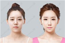 韩国V-line瓜子脸手术价格是多少?