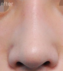 韩国三星梦(SamsungDream)整形医院歪鼻矫正案例对比图_术后