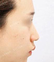 韩国SYSTEM整形医院隆鼻案例对比图_术前