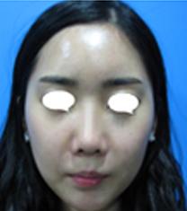 韩国Beauty people整形医院颧骨整形案例对比图_术后