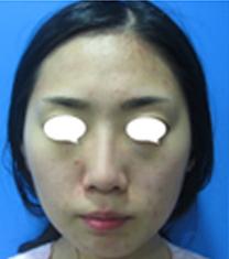 韩国Beauty people整形医院颧骨整形案例对比图_术前