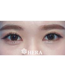 韩国赫拉(HERA)整形医院双眼皮案例对比图_术后