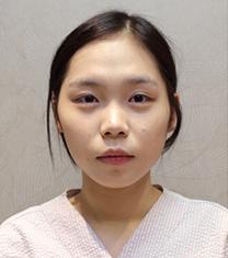 韩国Rose and整形医院隆鼻案例对比图_术前