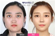 韩国faceline整形外科磨骨手术多少钱