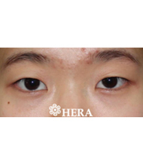 韩国赫拉(HERA)整形医院双眼皮案例对比图_术前