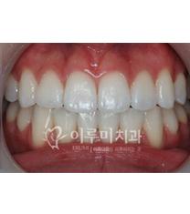 韩国erumi牙科医院牙齿美白案例对比图