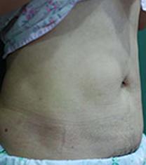 韩国德克莱斯(classic)整形医院腰腹吸脂案例对比图_术后