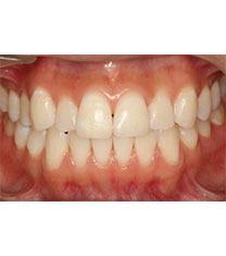 韩国CALIFORNIA牙科牙齿美白案例对比图