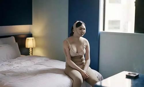 韩国做完整形手术在酒店恢复