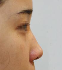 韩国珍爱(cherish)整形医院隆鼻案例对比图