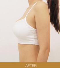 韩国UP2C整形医院注射丰胸案例对比图