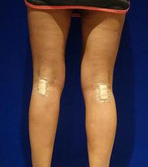 韩国HAFIS整形医院腿部吸脂案例对比图_术后